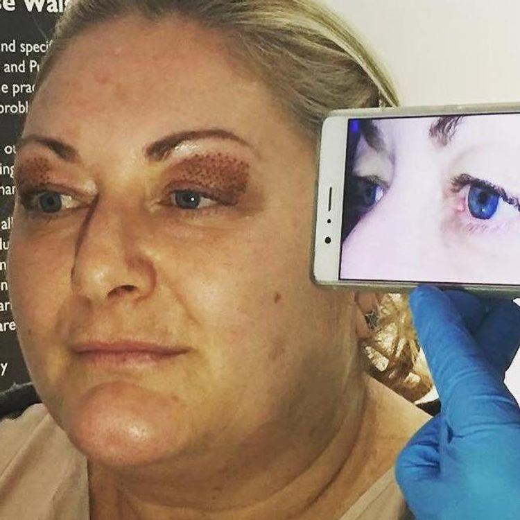 Fibroblast Results - Non surgical upper eye lift!