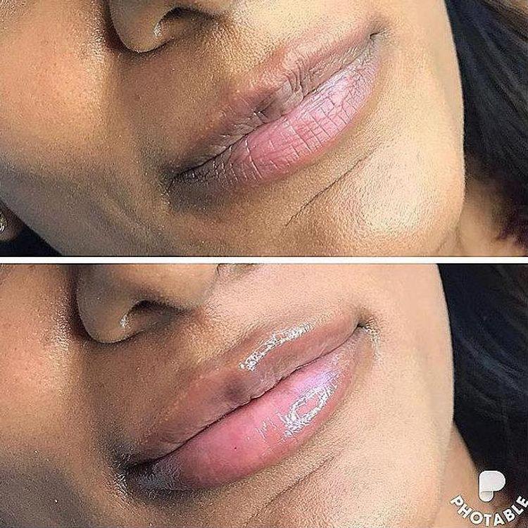 Lip Filler 0.55ml