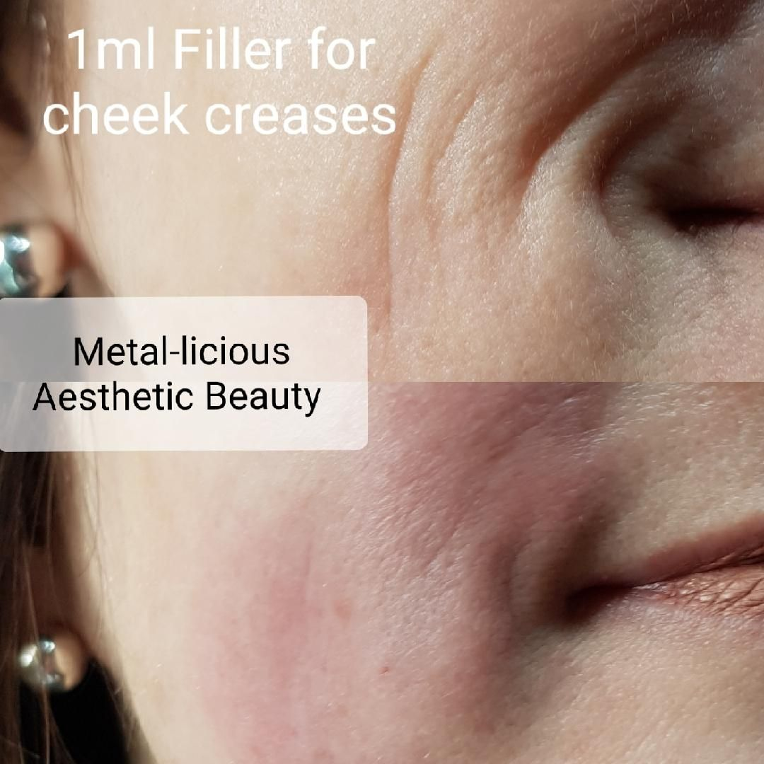 Metal-licious Aesthetic Beauty, Ongar, England - pricing, reviews